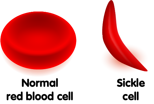 What Everyone Should Know About Sickle Cell Anaemia