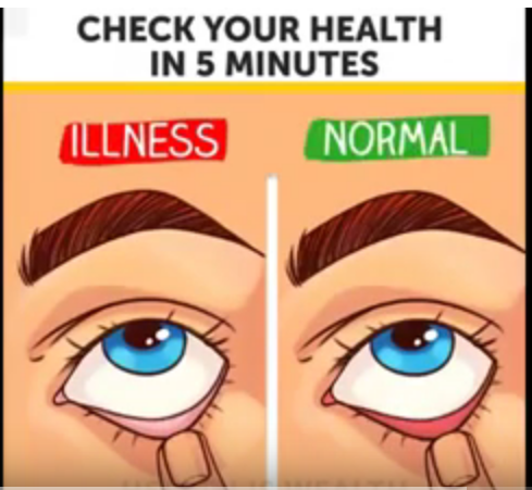Check your health